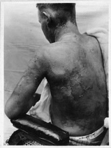 Photo by  National Museum of Health and Medicine Soldier with mustard gas burns on his back and arm